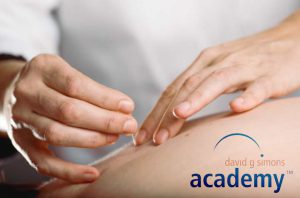dry needling chirosanteparis